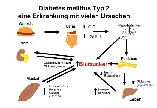 Ab welchem blutzucker hat man diabetes